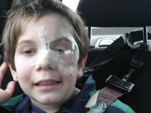 note the ridiculous amount of tape all over his face in our attempt to keep him from touching his eye